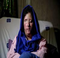 درخواست مادر دختر قربانی اسیدپاشی از ظریف و هاشمی