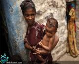 قحطی در یمن و سوءتغذیه کودکان+تصاویر